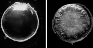 These images from Melinda Duncan's lab show the clear lens of a healthy eye and one clouded by a cataract.