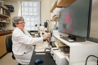 Melinda Duncan looks at a section through an eye showing a cataractous lens in her lab, where she conducts research on some of the short-term and long-term side effects that can occur with cataract surgery.
