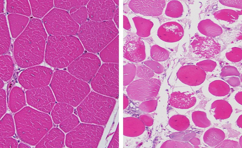 This figure shows normal muscle cells in broiler chickens on the left, and muscle cells with early-phase degeneration that leads to wooden breast syndrome on the right.